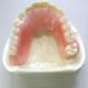 プラスチック義歯(精密重合)